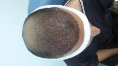 beard-hair-transplant (6)
