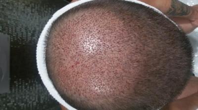 beard-hair-transplant (7)