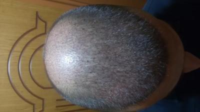 beard-hair-transplant (8)