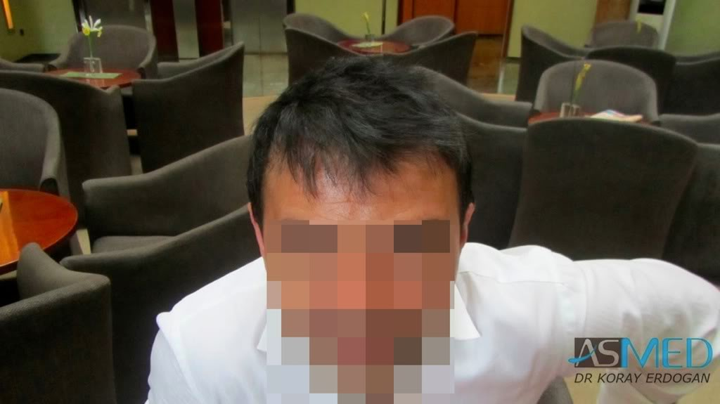 best-hair-transplant-turkey-fue (10)