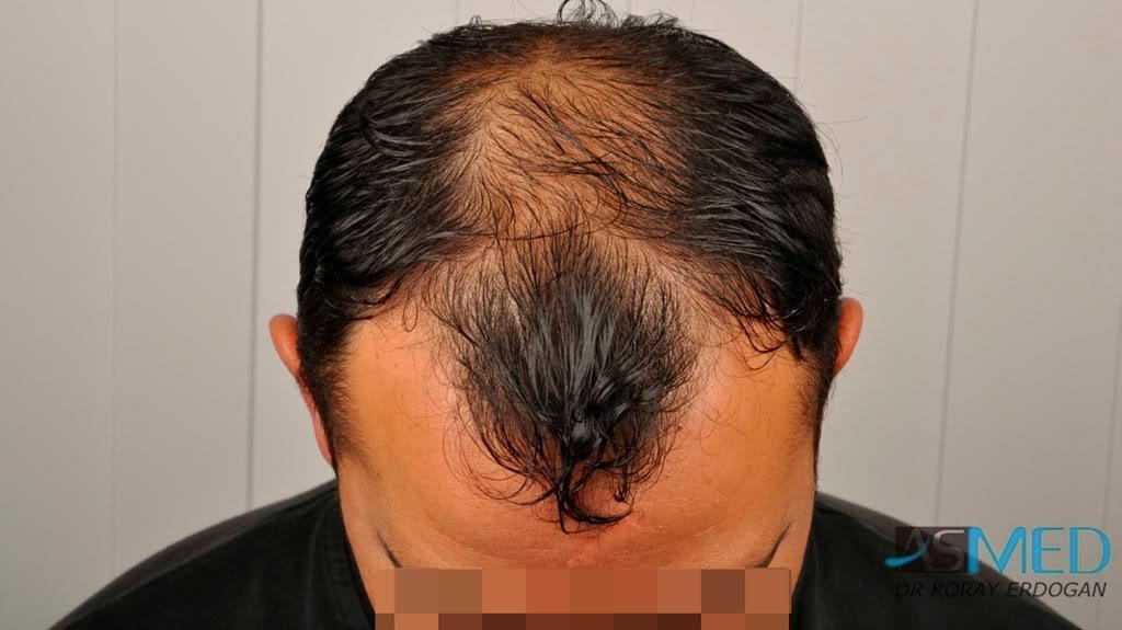 best-hair-transplant-turkey-fue (16)