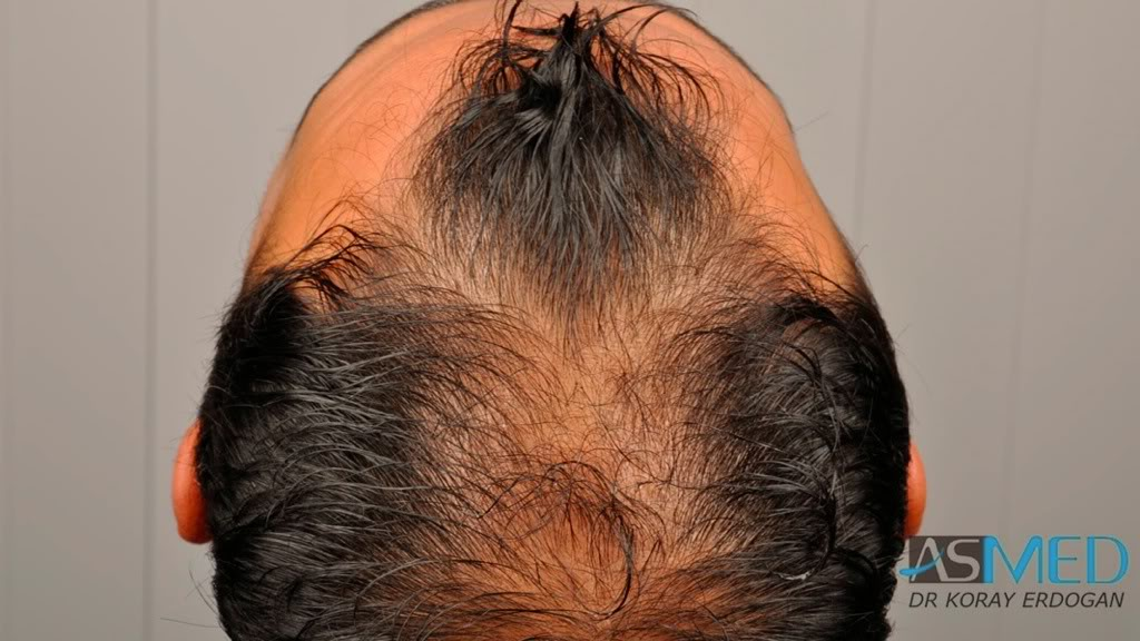 best-hair-transplant-turkey-fue (2)