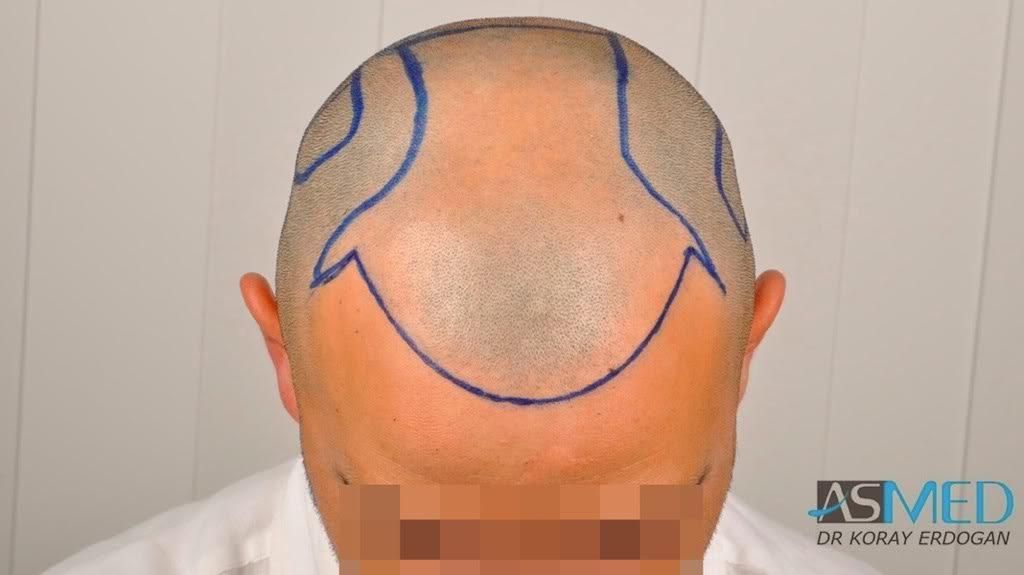 best-hair-transplant-turkey-fue (5)
