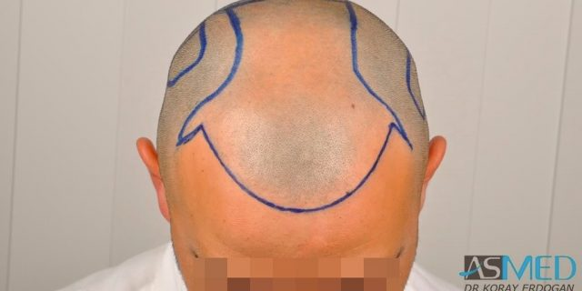 best-hair-transplant-turkey-fue (5)