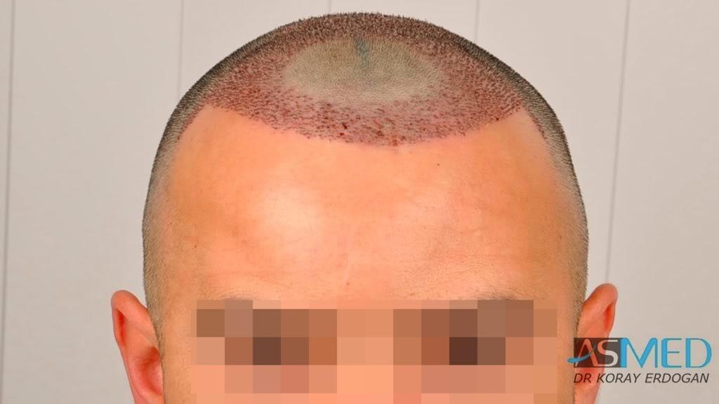 best-hair-transplant-turkey-fue (6)