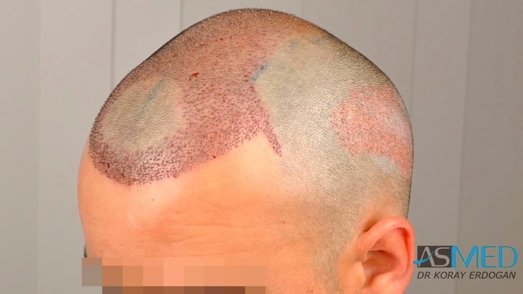 best-hair-transplant-turkey-fue (8)