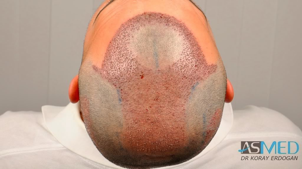 best-hair-transplant-turkey-fue (9)