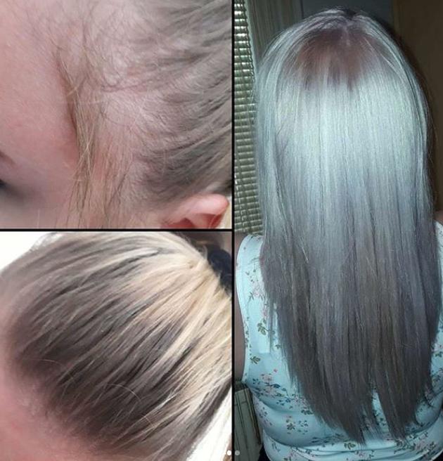 hairlossshampoo