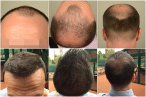 hair-implants-turkey (1)