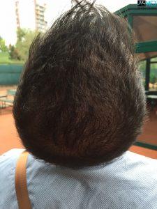 hair-implants-turkey (11)
