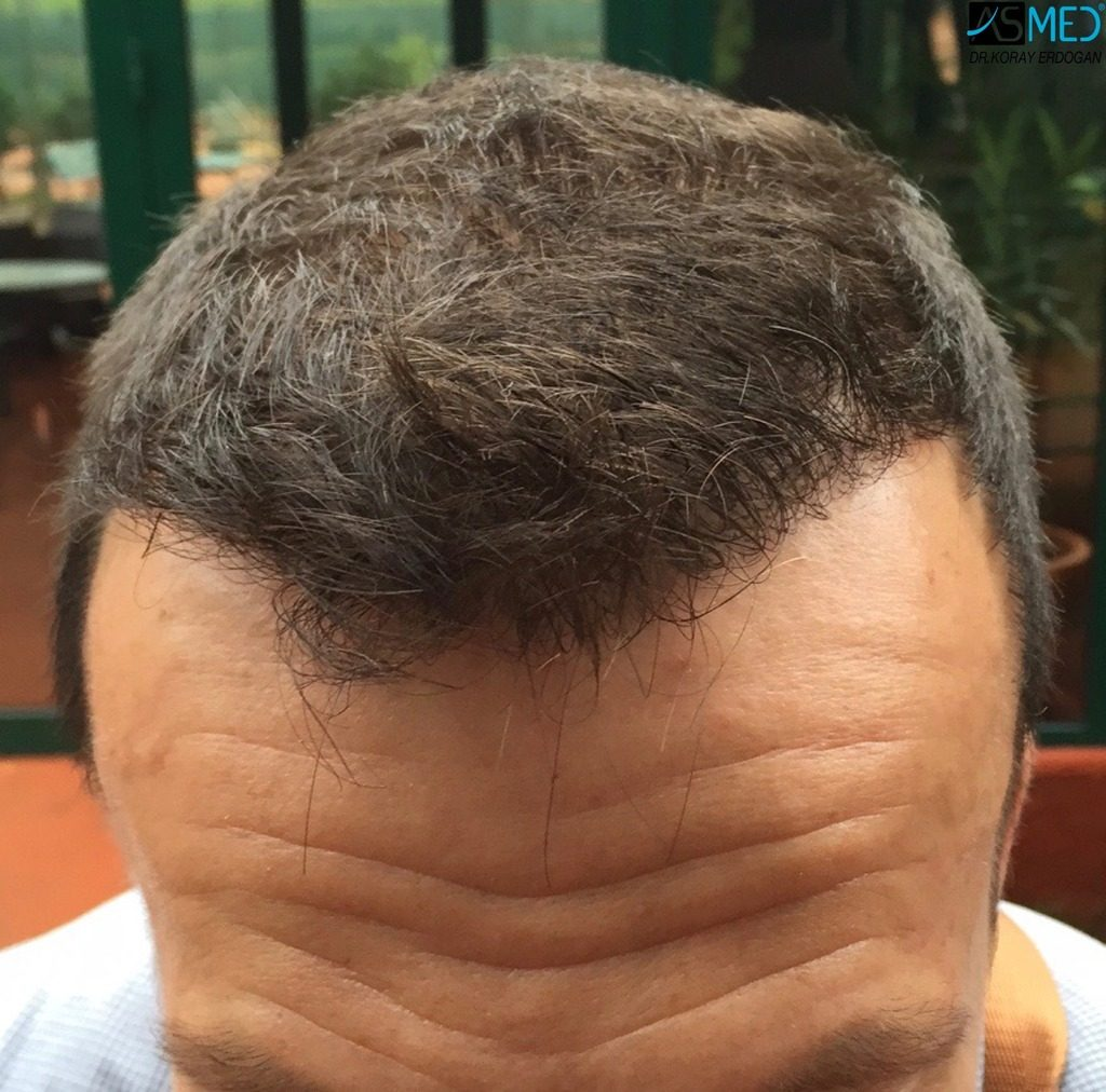 hair-implants-turkey (12)