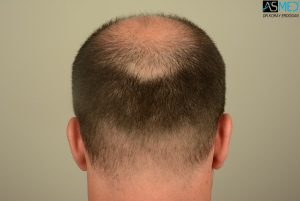 hair-implants-turkey (4)