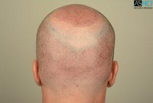 hair-implants-turkey (8)