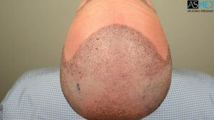 hair-implants-turkey (9)
