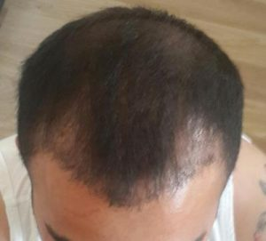 arenamed-hair-transplant (11)