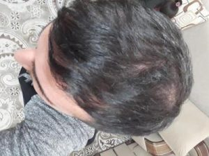arenamed-hair-transplant (3)