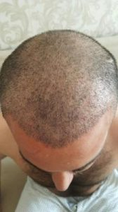 arenamed-hair-transplant (4)