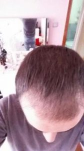emrah-cinik-hair-transplant-result (1)