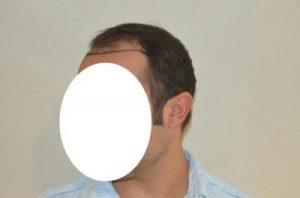 emrah-cinik-hair-transplant-result (6)