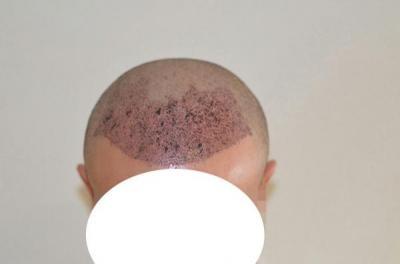 emrah-cinik-hair-transplant-result (8)