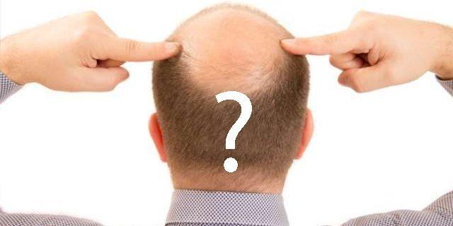 faq-hair-transplant