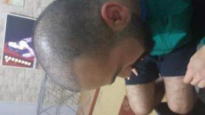 serkan-aygin-hair-transplant (10)