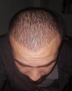 serkan-aygin-hair-transplant (11)