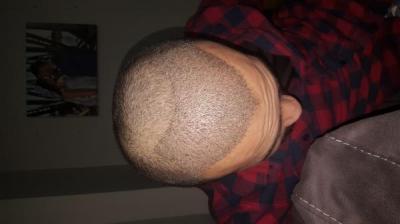 serkan-aygin-hair-transplant (5)