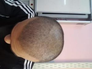 serkan-aygin-hair-transplant (6)