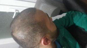 serkan-aygin-hair-transplant (9)