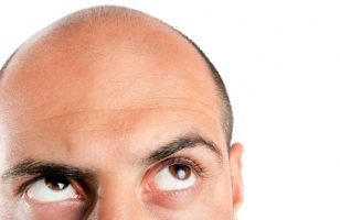 why-people-choose-turkey-for-hair-transplant