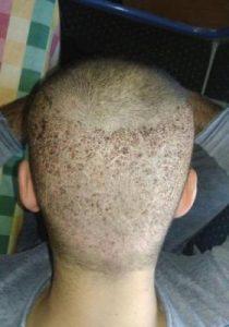 arenamed-hair-transplant-result (11)