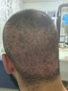arenamed-hair-transplant-result (12)
