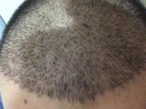 arenamed-hair-transplant-result (13)