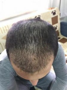arenamed-hair-transplant-result (15)