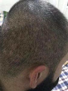 arenamed-hair-transplant-result (18)