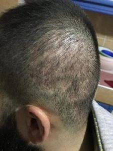 arenamed-hair-transplant-result (19)