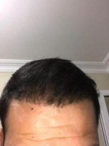 arenamed-hair-transplant-result (2)