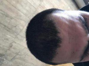 arenamed-hair-transplant-result (21)