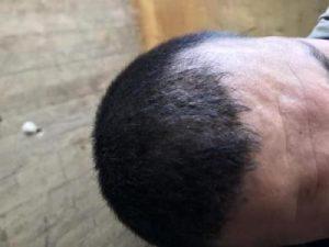 arenamed-hair-transplant-result (22)