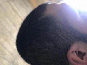 arenamed-hair-transplant-result (23)