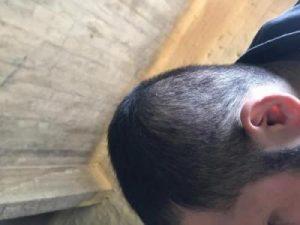 arenamed-hair-transplant-result (24)