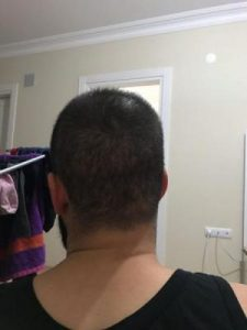 arenamed-hair-transplant-result (25)