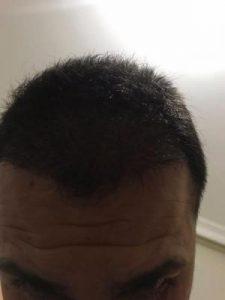 arenamed-hair-transplant-result (27)