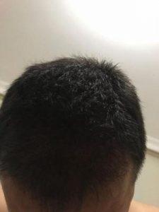 arenamed-hair-transplant-result (28)