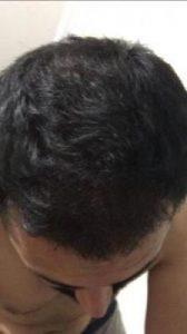 arenamed-hair-transplant-result (29)