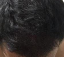 arenamed-hair-transplant-result (29)