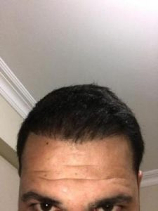 arenamed-hair-transplant-result (3)