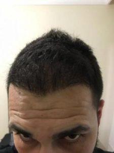 arenamed-hair-transplant-result (31)