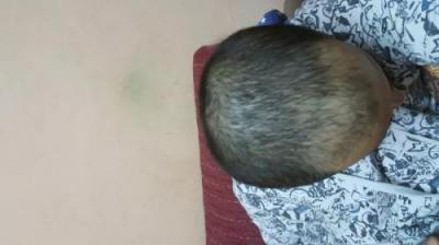 arenamed-hair-transplant-result (4)